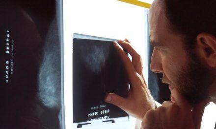 Granada: Forschung an nicht-invasiver Methode der Brustkrebs-Früherkennung
